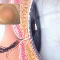 Understanding the benefits of liposomal eye sprays for dry eye ...