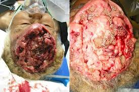 Ciri-Ciri Kanker Otak