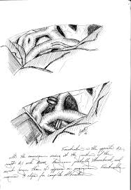 mighty spark studio dr denise crute acom aneurysm pen and ink intraoperative sketches