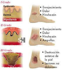 Imagenes de los tipos de quemaduras y sus síntomas