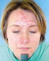 Severe acne is a worst condition of your face that also put off your confidence. Here Dr Khurram Mushir is giving you remedy to treat severe acne condition. - 5d90708d-ba46-4831-a2a9-f4a0d8049efc-Severe%2520Acne