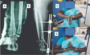 Article Fulle Text Article Fulle Text  a  Pre op radiograph showing distal radial fracture   b  Post    op radiograph showing insitu K wires with external fixator   c d    months Post   op clinical