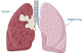 EXAMINATION AND DIAGNOSIS FOR LUNG CANCER