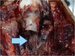 Accidental and occupational ligature strangulation in northern ...