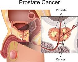 Image result for prostate cancer in africa