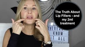 The Truth About Lip Fillers (and my 2ml injections) - Nadine Baggott ...