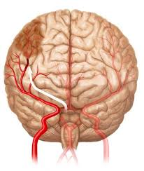 Resultado de imagen para accidente vascular encefalico