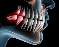 Bildergebnis für zahnärztliche chirurgie