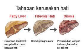 pengobatan penyakit kanker hati