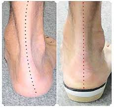 Image result for flat feet
