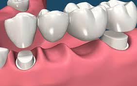 Risultati immagini per FOTO PROTESI dentali