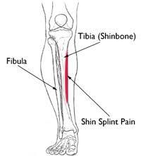 Shin Splint Pain
