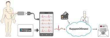 Кардиофлешка <b>ECG Dongle пульсометр</b> :: Тонометры ...
