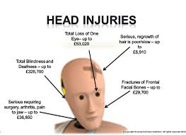 Image result for injury head