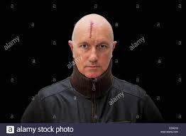 laceration stock photos laceration stock images alamy evil looking man a serious head injury looking straight at the camera stock image