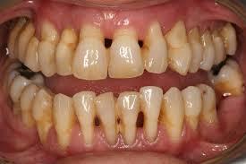 Resultat d'imatges de periodontitis