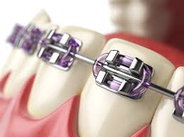 Bite Correction with <b>Dental Braces</b>   Your Options & What it Costs