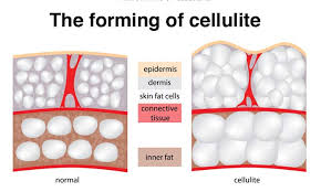 Image result for image cellulite