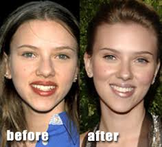 Image result for nose plastic surgery