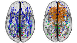 <b>Men and women's</b> brains are 'wired differently' - BBC News