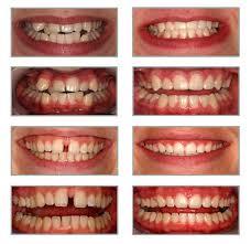 Image result for لامینیت دندان