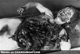 Image result for unit 731 torture