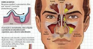 Resultado de imagem para sinusite