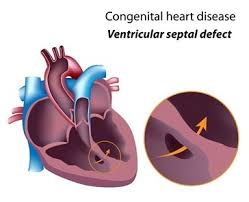 Image result for Children heart Treatment