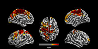 Reduced <b>gray</b> matter volume and cortical thickness associated with ...