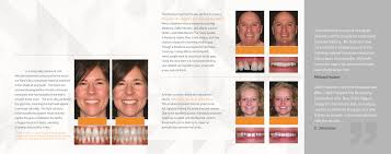 closing tooth spaces bioclear method click pamphlet below to and print