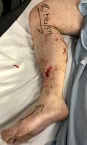 A <b>man with a</b> traumatic lower limb injury | The BMJ