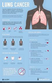 best ideas about community nursing nursing study do you want to learn more about lung cancer but you don t know where to start we ve worked to create an infographic that gives you the vital