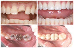 Dental crowns to protect your teeth at Time Dental in Farnham, Surrey