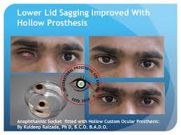 Light Weight or Hollow Custom Prosthesis: Kuldeep Raizada, Ph D, BCO, BADO - Hollow%2520or%2520Light%2520weight%2520prosthesis-Kuldeep%2520Raizada