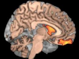 Work Ethic Depends On Levels Of Dopamine In The Brain - Business ... How Dopamine Levels In Your Brain Affect Your Work Ethic