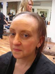 Helen Hall before Bald: Helen Hall before treatment. Helen, from Mansfield Woodhouse, near Nottingham, had already been suffering from TTM, as it's known, ... - Helen-Hall-before