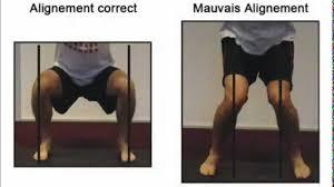 """Résultat de recherche d'images pour """"sport mauvaise position du genou"""""""