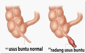 Image result for gambar operasi usus buntu