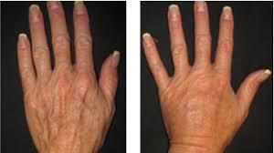 Kết quả hình ảnh cho Autologous fat grafting OF HAND
