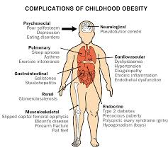 child obesity essay children obesity research paper fc