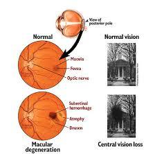 وصفه وخلطة أعشاب لعلاج تآكل ماقولة العين Macular Degeneration