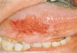 Tổn thương hồng sản (mảng đỏ), nguy cơ hóa ác cao