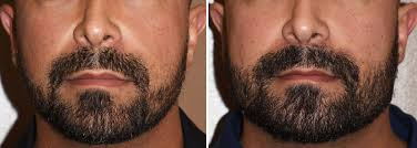 custom facial implants archives total jawline enhancement can be done using a custom jawline implant keeping the projections at the chin and jaw angle areas more modest thin
