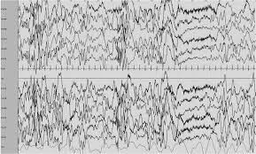 """Résultat de recherche d'images pour """"epilepsies eeg pathologique"""""""