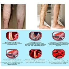2PCS 100% original <b>Veins Varicose Treatment</b> Plaster <b>Treatment</b> ...