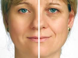 Image result for guinot hd picture before and after