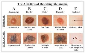 skin cancer chart spot check the lauren savoy olinde foundation hd image of is it cancer know your skin cancer abcs it might save your life