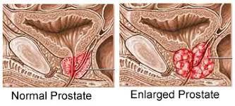 Image result for enlarged prostate africa