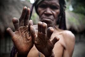 آداب و رسوم عجیب دنیا ، قطع کردن انگشتان در گینه