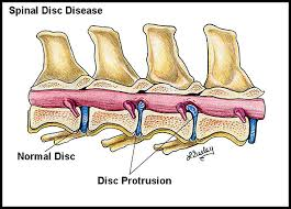 Image result for picture of spinal disc in a dog